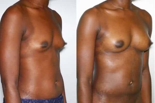 lipofilling mammaire avant apres chirurgien esthetique paris 16 levallois perret docteur frederic picard 2