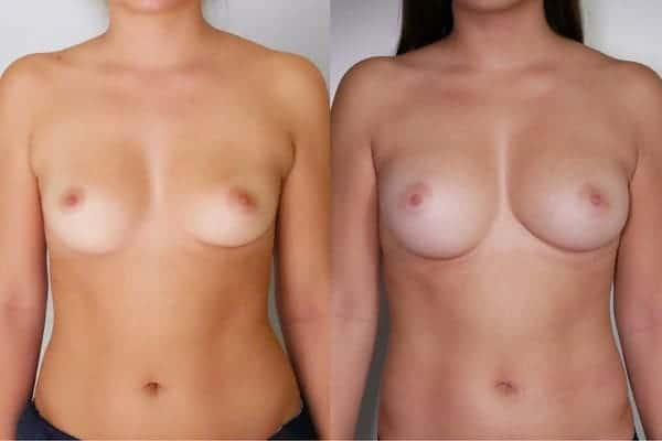 lipofilling mammaire avant apres chirurgien esthetique paris 16 levallois perret docteur frederic picard 3