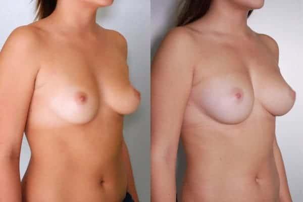 lipofilling mammaire avant apres chirurgien esthetique paris 16 levallois perret docteur frederic picard 4