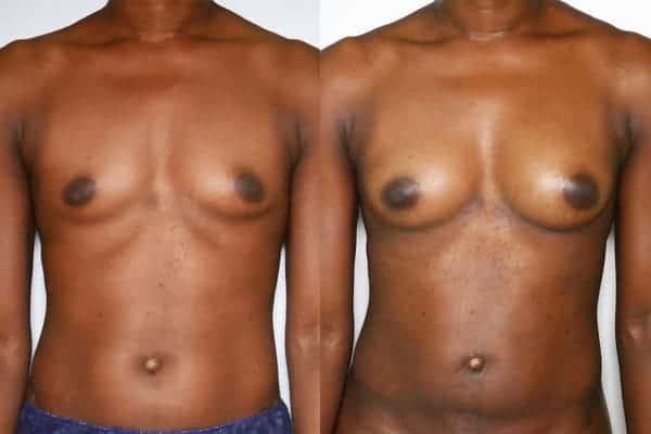lipofilling mammaire avant apres chirurgien esthetique paris 16 levallois perret docteur frederic picard