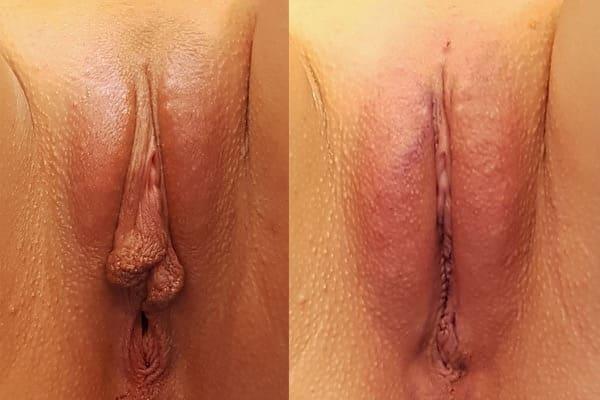 nymphoplastie avant apres photos chirurgie esthetique intime docteur frederic picard chirurgien esthetique paris 16 levallois perret 92 2