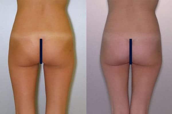 protheses fesses implant fessier avant apres docteur frederic picard chirurgien esthetique paris levallois specialiste chirurgie fesses 1