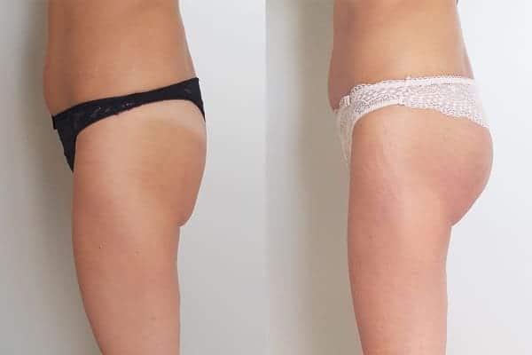 protheses fesses implant fessier avant apres docteur frederic picard chirurgien esthetique paris levallois specialiste chirurgie fesses 4