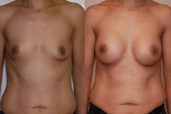 protheses mammaires avant apres docteur frederic picard chirurgien esthetique paris 16 levallois perret 10