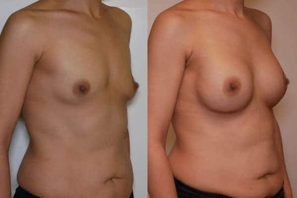 protheses mammaires avant apres docteur frederic picard chirurgien esthetique paris 16 levallois perret 12