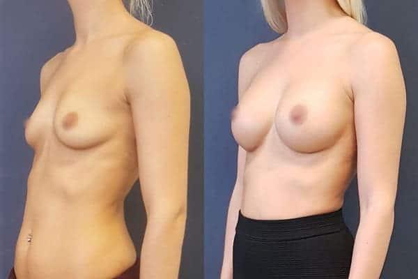 protheses mammaires avant apres docteur frederic picard chirurgien esthetique paris 16 levallois perret 14