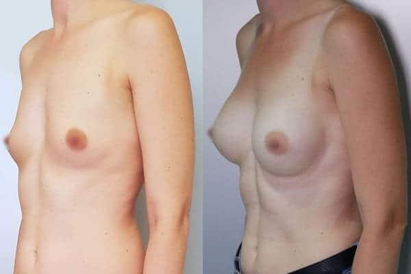 protheses mammaires avant apres docteur frederic picard chirurgien esthetique paris 16 levallois perret 2