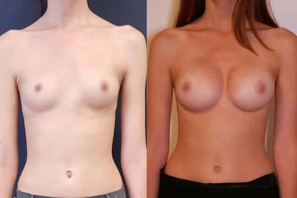 protheses mammaires avant apres docteur frederic picard chirurgien esthetique paris 16 levallois perret 3