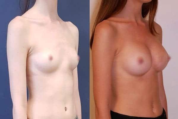 protheses mammaires avant apres docteur frederic picard chirurgien esthetique paris 16 levallois perret 4