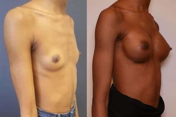 protheses mammaires avant apres docteur frederic picard chirurgien esthetique paris 16 levallois perret 8