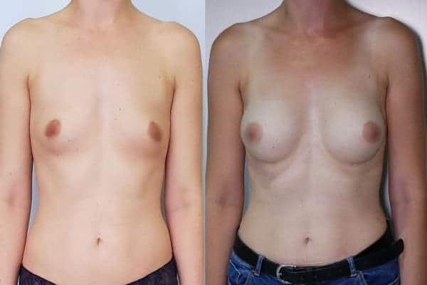 protheses mammaires avant apres docteur frederic picard chirurgien esthetique paris 16 levallois perret