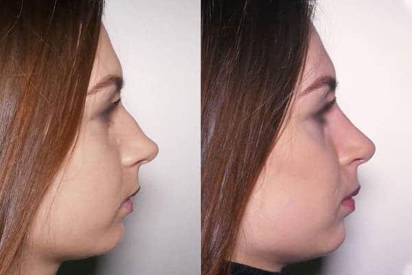 rhinoplastie avant apres docteur frederic picard chirurgien esthetique paris levallois specialiste rhinoplastie paris 1
