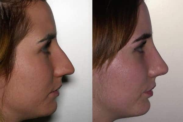rhinoplastie avant apres docteur frederic picard chirurgien esthetique paris levallois specialiste rhinoplastie paris 10