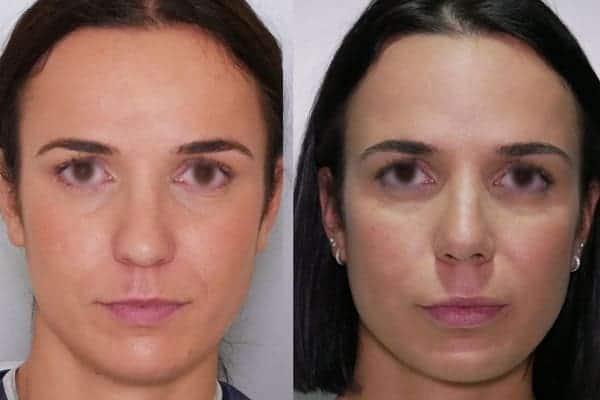 rhinoplastie avant apres docteur frederic picard chirurgien esthetique paris levallois specialiste rhinoplastie paris 12