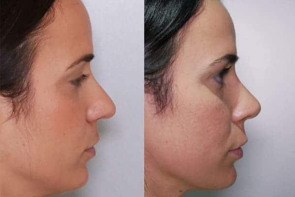 rhinoplastie avant apres docteur frederic picard chirurgien esthetique paris levallois specialiste rhinoplastie paris 13