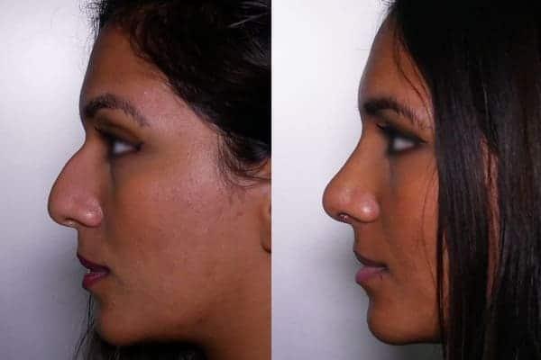 rhinoplastie avant apres docteur frederic picard chirurgien esthetique paris levallois specialiste rhinoplastie paris 2