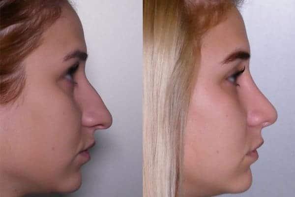rhinoplastie avant apres docteur frederic picard chirurgien esthetique paris levallois specialiste rhinoplastie paris 4