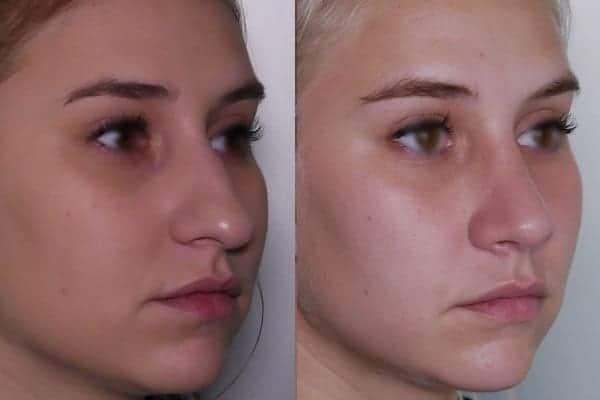 rhinoplastie avant apres docteur frederic picard chirurgien esthetique paris levallois specialiste rhinoplastie paris 5