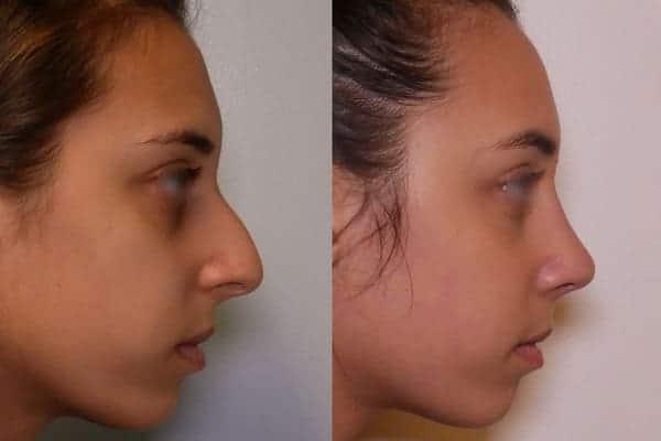 rhinoplastie avant apres docteur frederic picard chirurgien esthetique paris levallois specialiste rhinoplastie paris 8