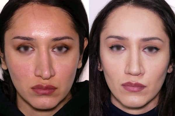 rhinoplastie secondaire avant apres docteur frederic picard chirurgien esthetique paris levallois specialiste rhinoplastie paris