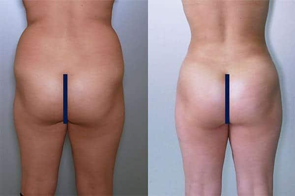 10 liposuccion des poignees d amour docteur frederic picard chirurgien esthetique paris levallois-perret
