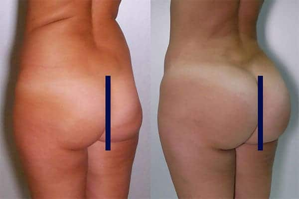 7 implants de fesses implants fessiers docteur frederic picard chirurgien esthetique paris levallois-perret