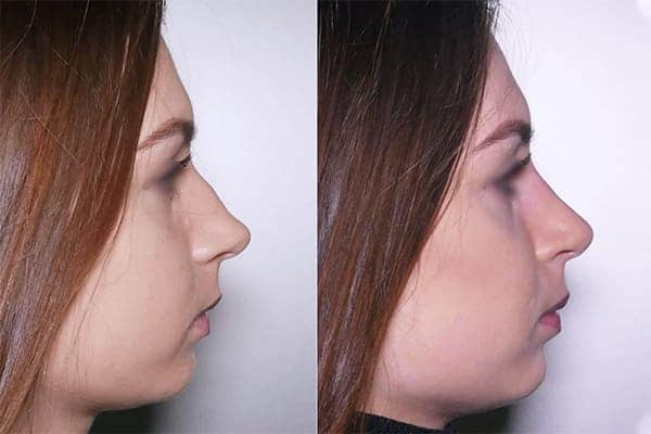 8 rhinoplastie primaire docteur frederic picard chirurgien esthetique paris levallois-perret